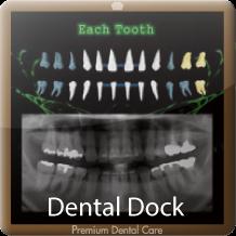 歯科健診(歯科ドック)